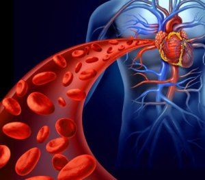 chelation-therapy-1
